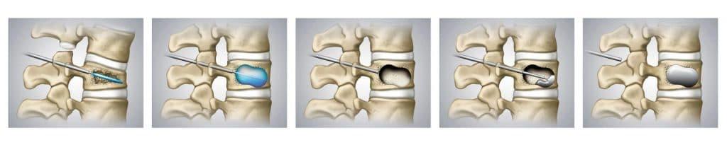 Medizinische Grafik: Mikrochirurgische Injektion von Knochenzement
