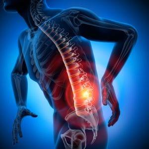 Darstellung von Schmerzen in der Lendenwirbelsäule