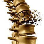 Medizinische Grafik: (Osteoporotische) Wirbelkörperfraktur