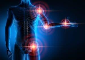Medizinische Grafik: Gelenkschmerzen