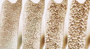 Unterschied gesunder und osteoporotischer Knochen