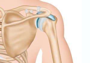 Medizinische Grafik: Schultergelenk