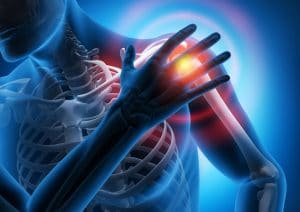 Schmerzen in der Schulter