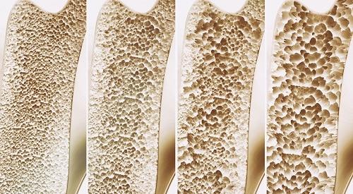 Medizinische Grafik: Unterschied gesunder und osteoporotischer Knochen